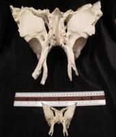 Sphenoid - Quadruple Size