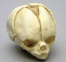 Osteo Cast Fetal Skull - 20 weeks BC-194