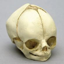 Osteo Cast Fetal Skull - 29 weeks BC-195