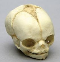 Osteo Cast Fetal Skull - 21 1/2 week old BC-220