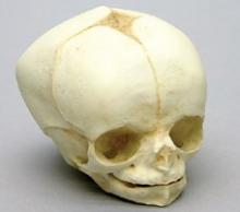 Osteo Cast Fetal Skull - 34 weeks old  BC-226