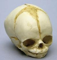 Osteo Cast Fetal Skull - 32 weeks  BC-181