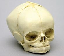 Osteo Cast Fetal Skull - 40 weeks BC 182