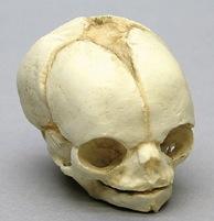 Osteo Cast Fetal Skull - 21 1/2 week old BC-220