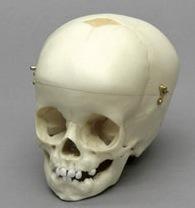Osteo Cast Child Skull 1 yr. old w/ Calvarium Cut BC-280