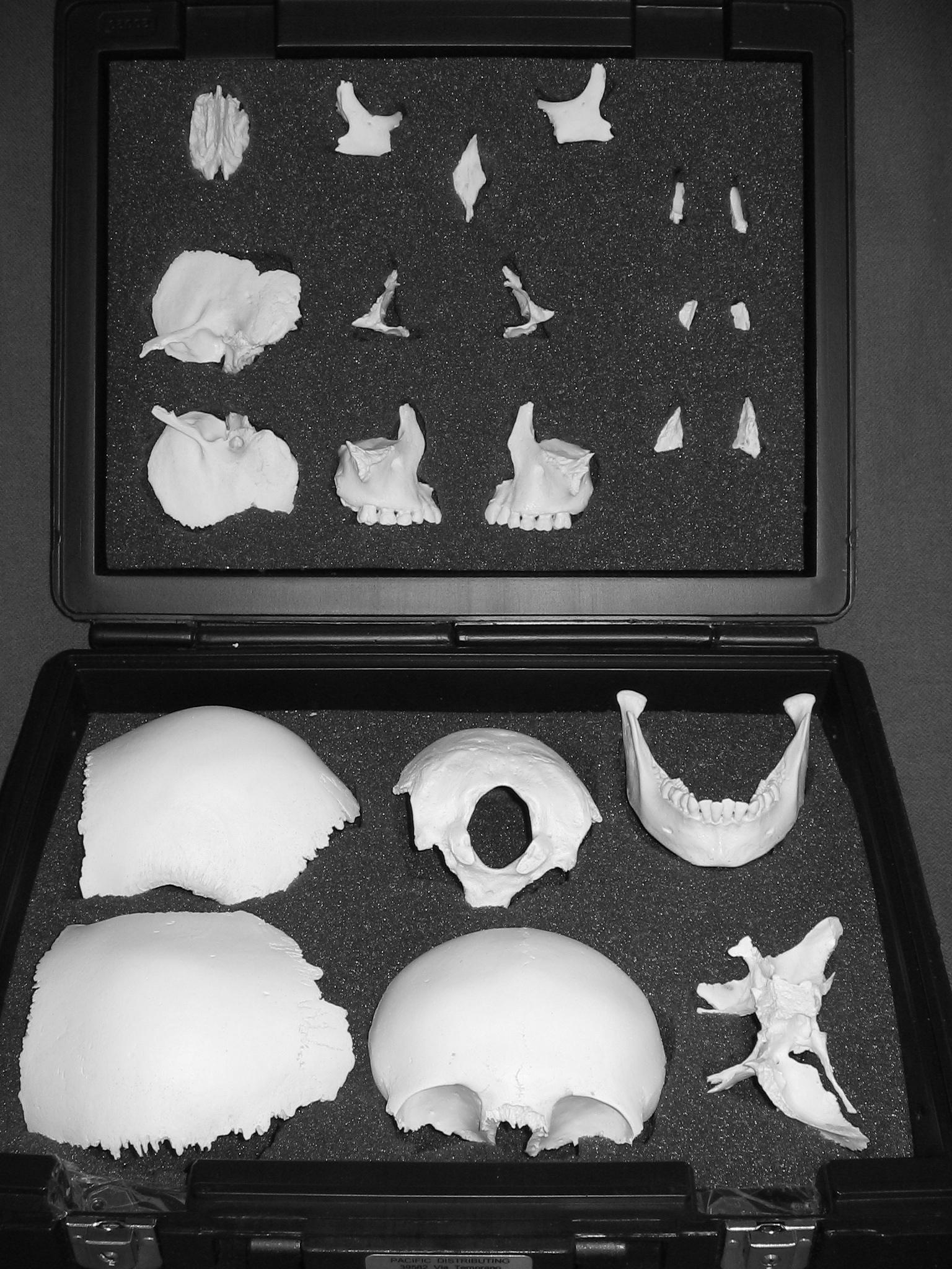 the swiss disarticulated skull